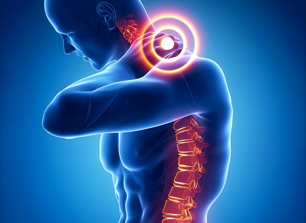 So wie die Ursachen der Beschwerden mannigfaltig sind, ist auch die Therapie bei Halswirbelsäulensyndrom (Zervicalsyndrom, HWS-Syndrom) )vielfältiger Natur. © CLIPAREA l Custom media / shutterstock.com