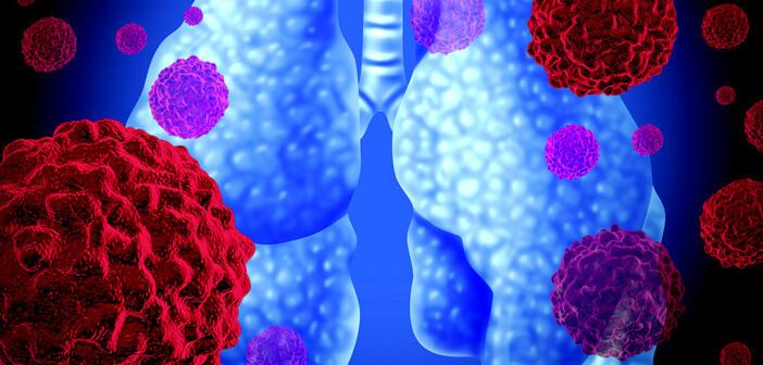 Das Lungenkarzinom zählt zu den häufigsten Krebsarten. © Lightspring / shutterstock.com