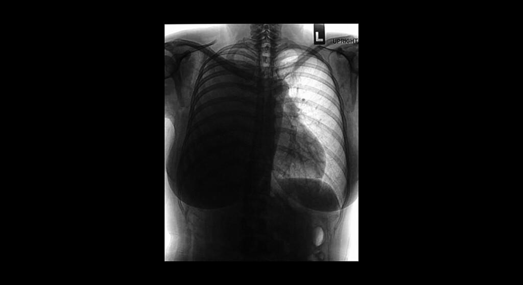 Besseres Überleben nach Operationen in zertifizierten Lungenkrebszentren. © Tewan Banditrukkanka / shutterstock.com