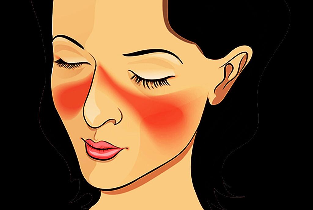 Bei Autoimmunerkrankungen – wie Systemischer Lupus erythematodes – spielt die Produktion von Interleukin 6 aus Keratinozyten der Haut eine Schlüsselrolle bei der Entstehung und Progression der Erkrankung. © Artemida-psy / shutterstock.com