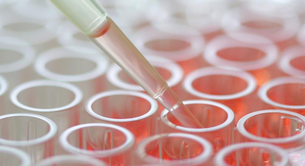 Immunmedizin wird die Krebsmedizin dominieren, meint der Experte. © UKR