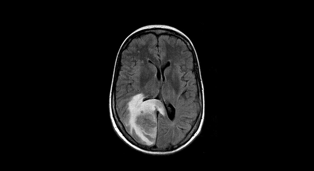 Dank lokaler Therapien versterben immer weniger Patienten an Hirnmetastasen. © Drahreg01 / GFDL