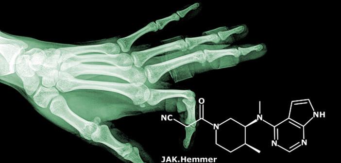 JAK-Hemmer bei rheumatoider Arthritis haben ein neuartiges Therapieprinzip. © thailoei92 / shutterstock.com