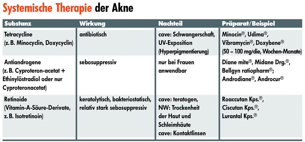 Akne vulgaris2