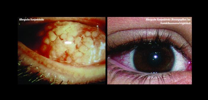 Allergische Konjunktivitis – das Auge ist bei bis zu 90 Prozent der Atopiker mitbeteiligt.