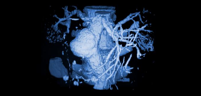 Heimtückisch ist, dass man eine Erweiterung der Bauchschlagader in den seltensten Fällen spürt und es keine Warnsignale einer Ruptur gibt.