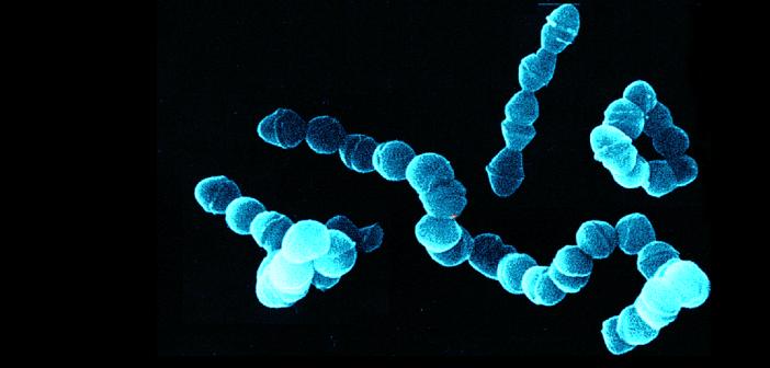 Neuere Chinolone bieten hier eine Therapieoption auch bei Betalaktam-resistenten Pneumokokken.