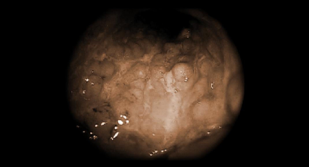 Endoskopisches Bild einer Colitis ulcerosa mit hochentzündlicher Schleimhaut, aufgehobener Architektur und fibrinbedeckten Ulzerationen.