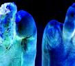 Diabetische Polyneuropathie ist der Wegbereiter für den diabetischen Fuß.