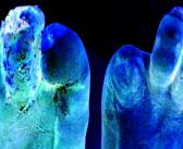 Diabetische Polyneuropathie – diabetische Neuropathie