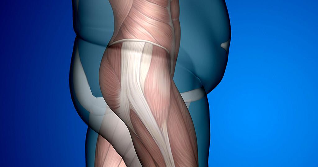 Fettleibigkeit © design36 / shutterstock.com