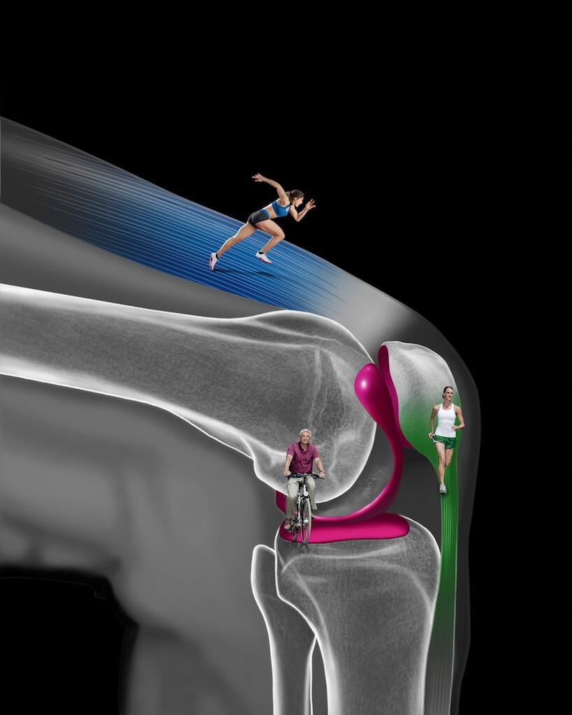 Modell Kniegelenk mit Belastungsbeispielen © Orthomol_JNB McCann Healthcare GmbH RM