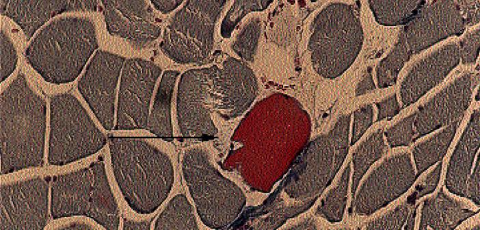 Myogelosen als Folge andauernder Muskelüberbelastung aus anatomisch-histologischer Sicht.