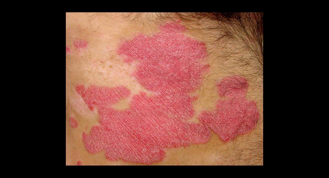 Die Schuppenflechte – Psoriasis vulgaris – kann von milden Verläufen mit einzelnen Flecken am Kopf oder Nabel bis hin zu einem Ganzkörperbefall alle Varianten zeigen. © Eisfelder / CC BY-SA 3.0 / Wikimedia