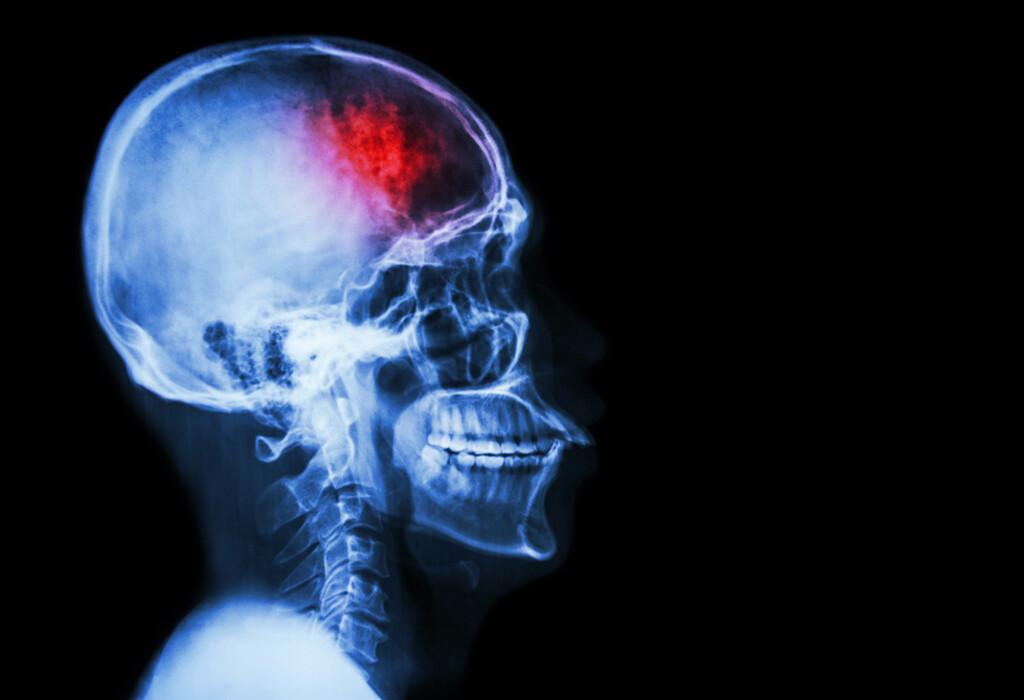 Der Anteil der Schlaganfallpatienten, die eine Lysetherapie bekommen, ist bereits hoch. Dennoch finden sich größere Unterschiede zwischen Krankenhäusern. © Puwadol Jaturawutthichai / shutterstock.com