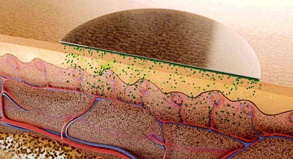 Transdermale Therapeutische Systeme wurden als Membran- und Matrixpflaster weiterentwickelt.