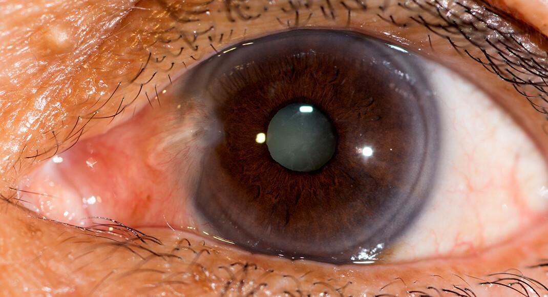 Gesunde Ernährung mit viel Vitamin C kann das Risiko für die Trübung der Augenlinse um rund ein Drittel senken. © ARZTSAMUI / shutterstock.com