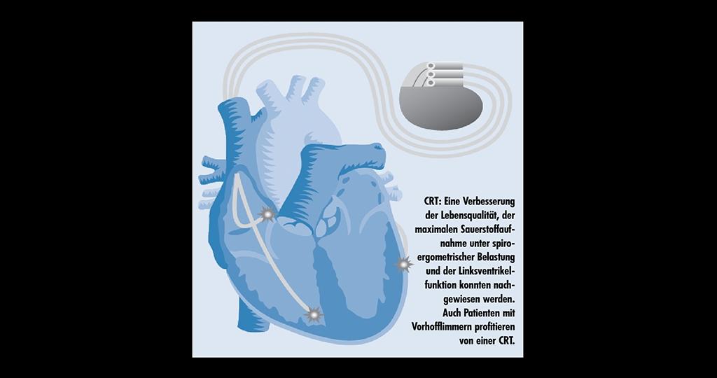Kardiale Resynchronisationstherapie (CRT): Biventrikulärer Schrittmacher bei chronischer Herzinsuffizienz wirksam