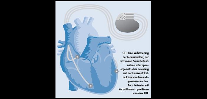 CRT – Kardiale Resynchronisationstherapie