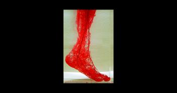 Duplexsonographie ist kein völlig neues Sonographieverfahren, sondern eine Weiterentwicklung der herkömmlichen Technik.