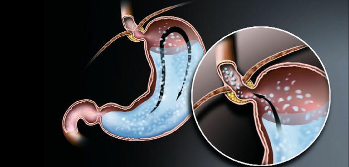 Die Refluxkrankheit wird immer – Barrett-Ösophagus ist ein Komplikation davon. © www.afcom.at
