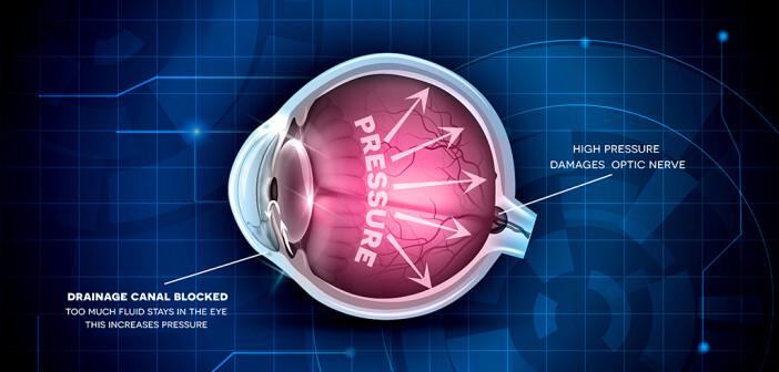 Erhöhter Augeninnendruck ist der bedeutendste Risikofaktor für ein Glaukom – der Augenerkrankung Grüner Star. © Tefi 7 shutterstock.com