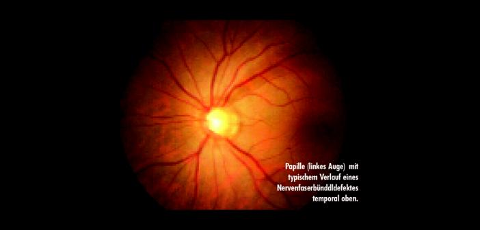 Die Therapie hat das Ziel, ein weiteres Fortschreiten der Glaukom-Erkrankung zu verhindern oder zumindest zu reduzieren.