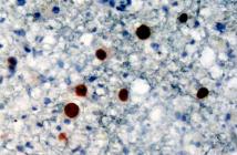 JC-Virus © Marvin 101 / CC 2.0 / wikimedia
