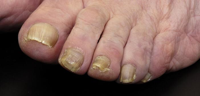 Die Heilung von Nagelpilz ist langwierig, erfordert Geduld und eine konsequente Therapie. © Josep Curto / shutterstock.com