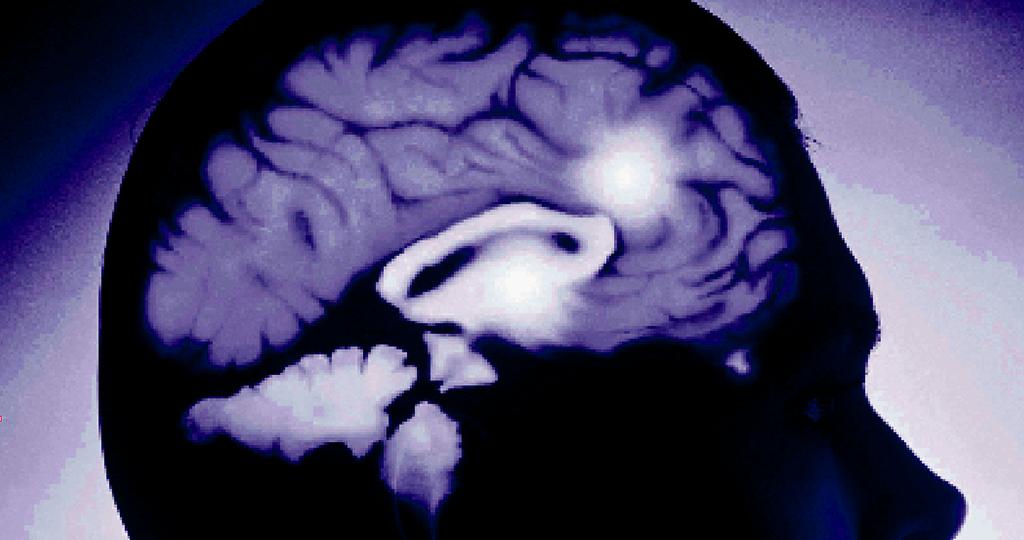Eines der Hauptprobleme in der Behandlung von Epilepsien ist das Phänomen der Therapieresistenz.
