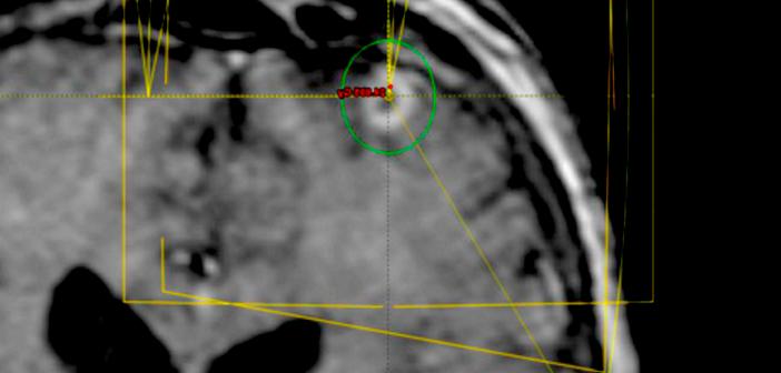 Stereotaktische Bestrahlung kann auf mehrere Behandlungstage verteilt werden.