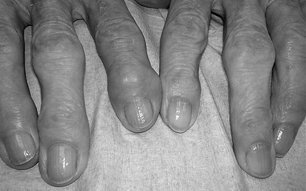 Heberden-Arthrose – eine Fingerpolyarthrose. © Drahreg01 / CC BY-SA 3.0 / wikimedia