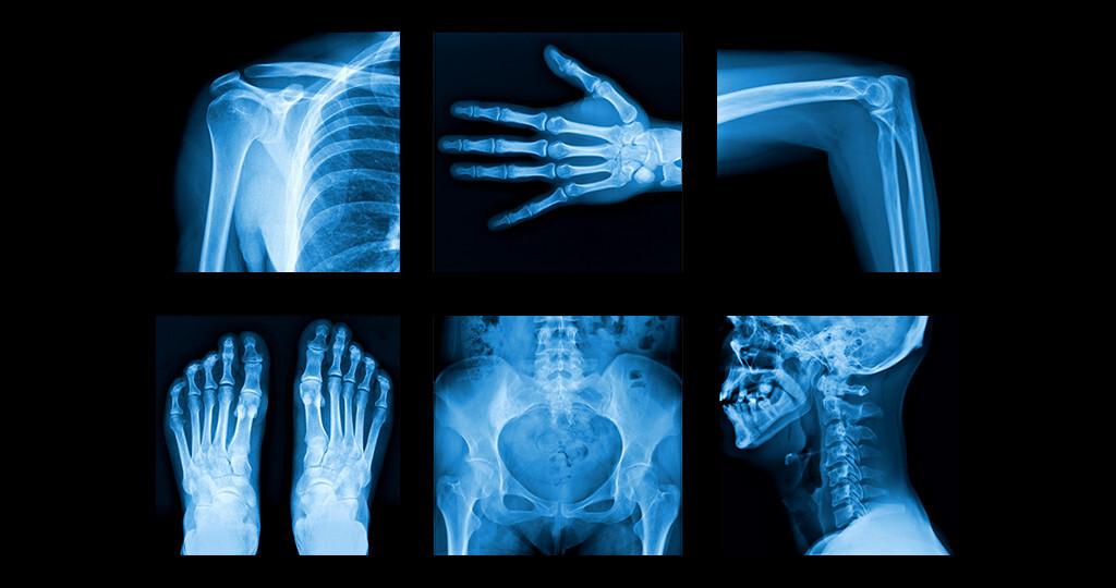 Experten fordern mehr Forschung im Kampf gegen Rheuma. © itsmejust / shutterstock.com