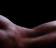 Das Therapiekonzept berücksichtigt, dass Hämorrhoiden aller Stadien ohne Beschwerden keiner Behandlung bedürfen.
