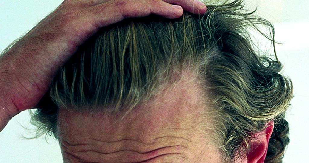 Haarpflege – Kopfhautpflege
