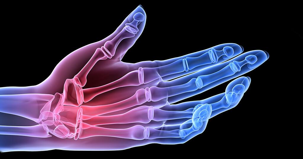 Das Outcome Measurement mit Integration mehrerer Messinstrumente ist aufgrund der Komplexität der Rheumatoiden Arthritis wichtig für eine sinnvolle Beurteilung von Therapieerfolgen. © Sebastian Kaulitzki / shutterstock.com