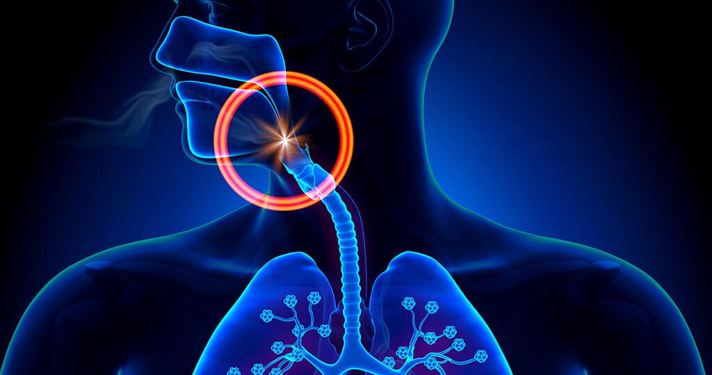 Obstruktive Schlafapnoe, Schlafapnoesyndrom – anatomische Konzept. © decade3d - anatomy online / shutterstock.com
