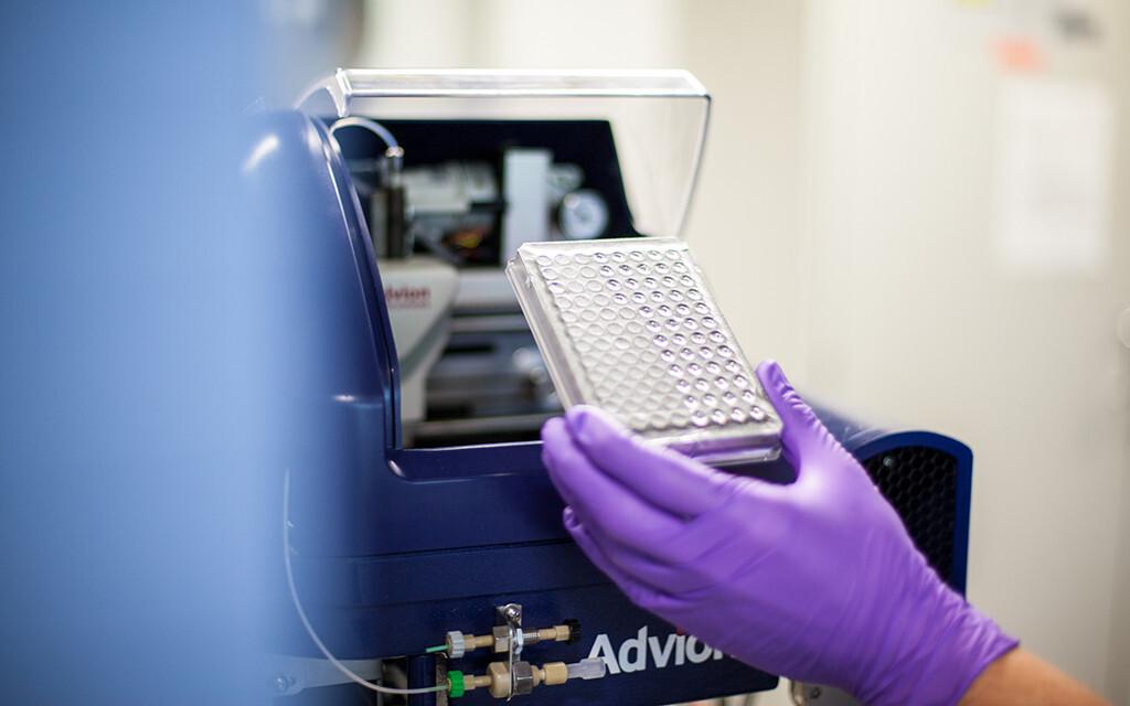 Mit einer Massenspektrometrie kann die Blutfettanalyse vorgenommen werden. © Stephan Wiegand / Medizinische Fakultät TU Dresden, Stabsstelle Öffentlichkeitsarbeit und Marketing