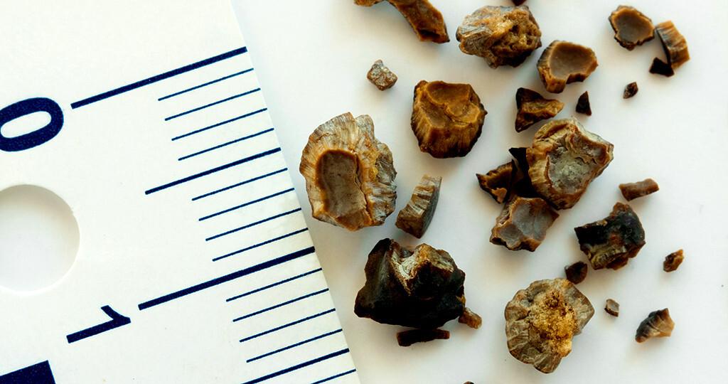 Urolithiasis: Vorbeugen und Therapie der Harnsteine und Nierensteine. © Evan Lorne / shutterstock.com