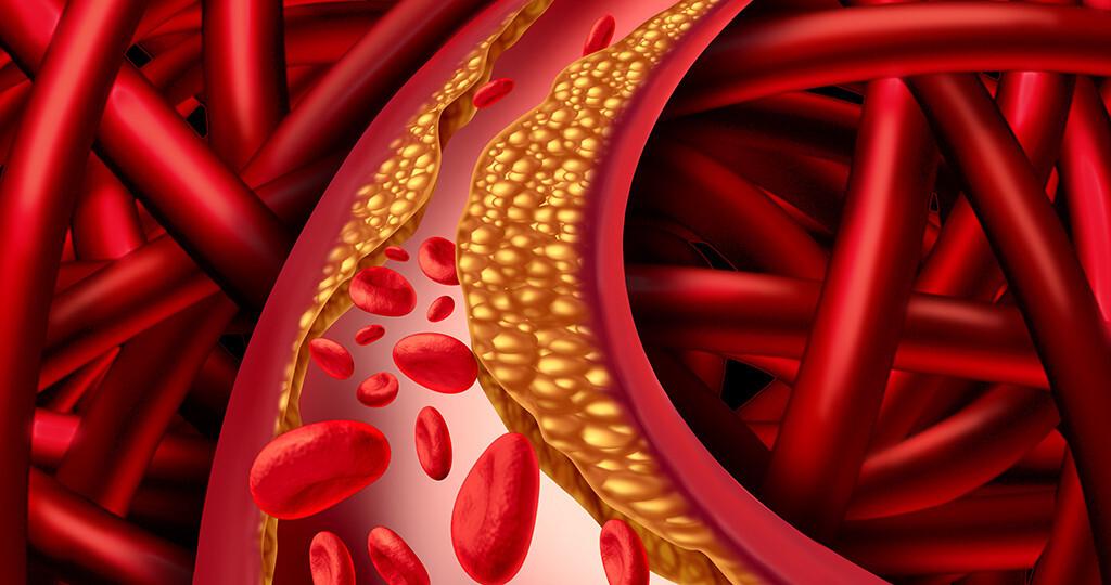 Fettstoffwechselstörungen –Lipoproteine im Blut. © Lightspring / shutterstock.com