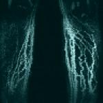 Lymphödem im Röntgenbild einer MR-Lymphangiographie.