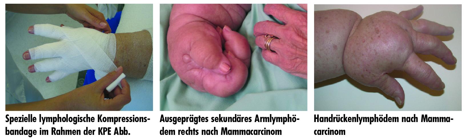 Lymphödem2