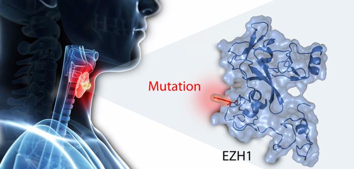 Das autonome Adenom ist häufig mit einer Mutation in dem EZH1-Gen IST vergesellschaftet. © Davice Calebiro / Kerstin Bathon