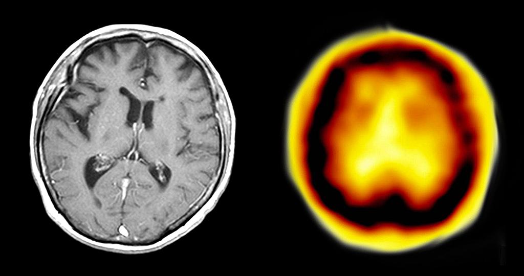 10. Internationale Konferenz zur frontotemporalen Demenz (FTD) werden 500 - 600 Neurologen, Psychiater, Neuropsychologen, Gerontologen und Grundlagenwissenschaftler erwartet. © Drahreg01 /CC BY-SA 3.0 / wikimedia