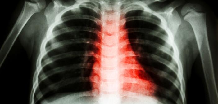 Rheuma bei Kindern im Röntgen. © Puwadol Jaturawutthichai / shutterstock.com