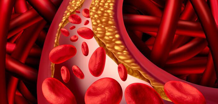 Ridikofaktor hohes Cholesterin © lightspring / shutterstock.com