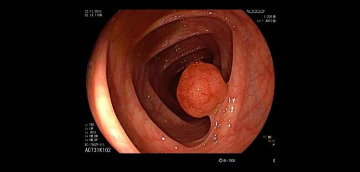 Ist der Darm vor der Darmspiegelung optimal gereinigt, können Ärzte Auffälligkeiten wie diesen Polypen gut erkennen und wenn nötig entfernen. © Prof. A. Meining, Uniklinikum Ulm