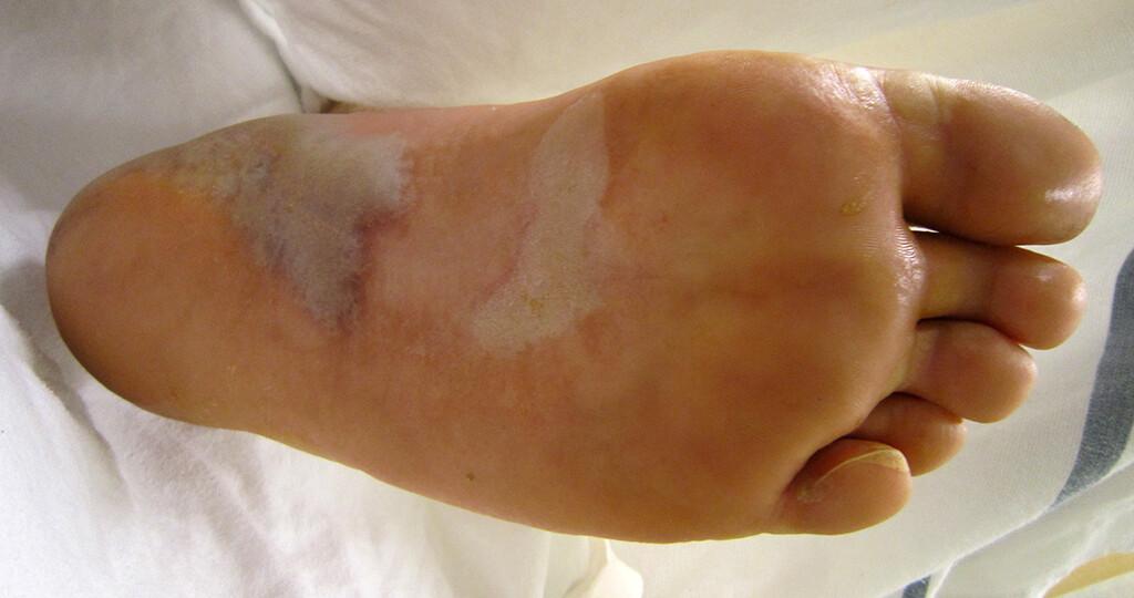 Epidermolysis bullosa simplex © James Heilman, MD / CC BY-SA 3.0 / wikimedia