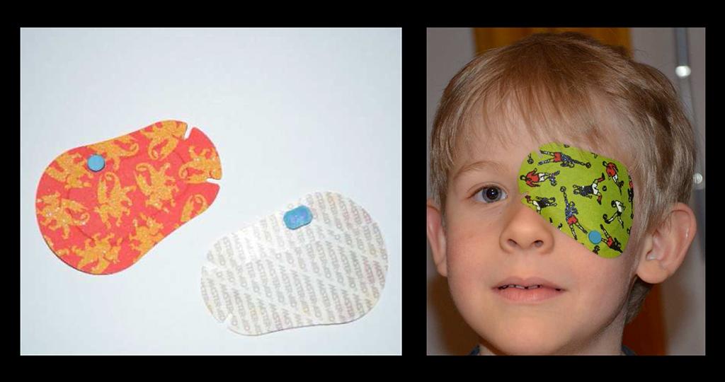 Abbildung 1: Links: TheraMon®-Mikrosensor (blau) im Okklusionspflaster (Außen- und Innenansicht). Rechts: TheraMon®-Mikrosensor (blau) kaum sichtbar integriert im Pflaster auf dem linken Auge. © Professor Dorothea Besch, Universitäts-Augenklinik Tübingen