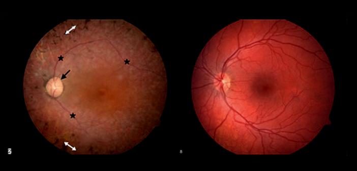 Usher syndrom (links) im Vergleich zu normaler Retina (rechts). © National Institutes of Health / wikimedia